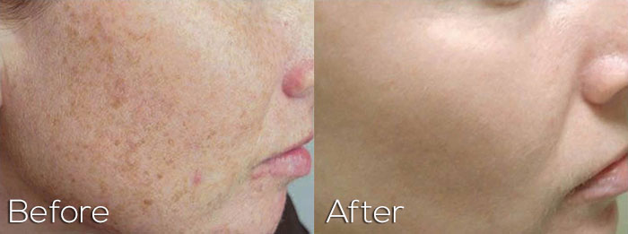 Photofacial On Cheeks With Sun Spots - Before And After