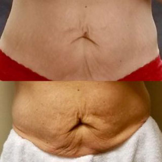 Body Contouring Before and After at Sunset MedSpa