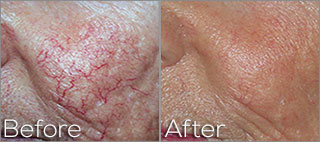 Photofacial On Cheeks - Before And After