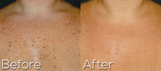 Photofacial On Neck and Chest - Before And After