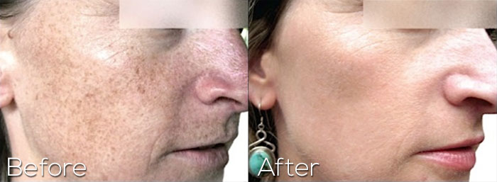 Photofacial On Cheeks With Age Spots - Before And After