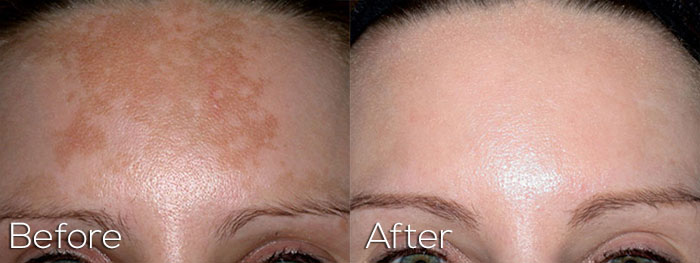 Photofacial On Forehead With Discoloration - Before And After